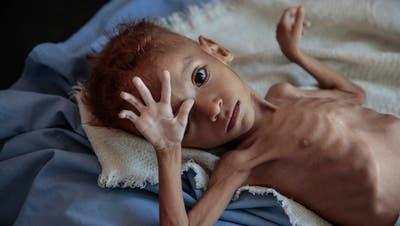 Ein massiv unterernährter Knabe im Jemen. Gesundheitsorganisationen zufolge sind in dem arabischen Land seit Ausbruch des Bürgerkriegs vor drei Jahren mutmasslich 85'000 Kinder im Alter unter fünf Jahren an Unterernährung gestorben.(Bild:Hani Mohammed/AP (Hajjah, 1. Oktober 2018))