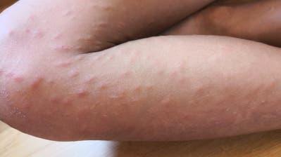 Wenn Entenflöhe in menschliche Haut beissen, kann das zu einer allergischen Reaktion wie bei diesem Kind führen. (Bild: Facebook)