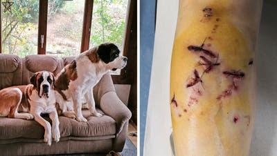 Die beiden Bernhardiner sind mittlerweile beschlagnahmt worden. Eins der Tiere hatte in Gaissau eine Frau ins Bein gebissen und verletzt. (Bilder: pd)