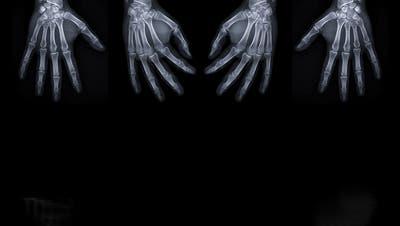 Röntgenbild beider Hände. (Bild: Getty)