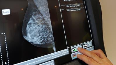 Mammografie-Aufnahme einer Brust zur Früherkennung von Tumoren. (Bild: Keystone)