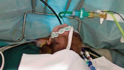 Todesfälle bei Herzoperationen: Jetzt reagiert das Kinderspital Zürich