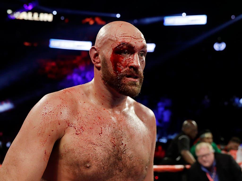 In der 3. Runde zog sich Fury eine tiefe und stark blutende Schnittwunde oberhalb des rechten Auges zu (Bild: KEYSTONE/FR159466 AP/ISAAC BREKKEN)