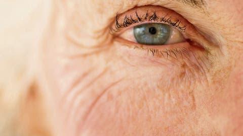 Im Ausland wird das günstigere Avastin gegen die Altersblindheit namens AMD häufig eingesetzt. Nicht so in der Schweiz. Hier wird das teurere Medikament Lucentis verwendet . (Bild: Getty Images)