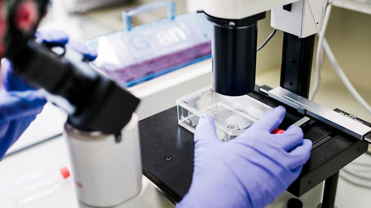 Basler Forschungsprojekt ergründet Muskelschwund im Alter