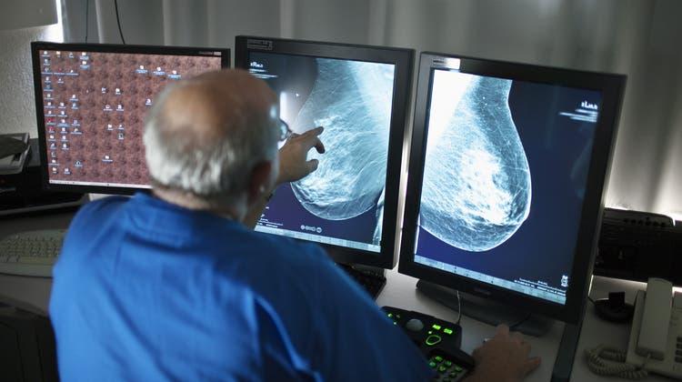 Solothurn setzt auf Brustkrebs-Früherkennung – jetzt liegt es am Kantonsrat