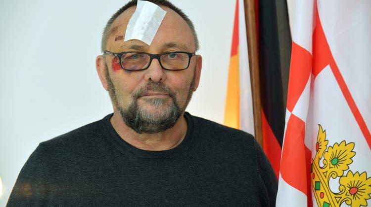 Attacke auf AfD-Magnitz: Jetzt ist klar, woher die Verletzungen stammen