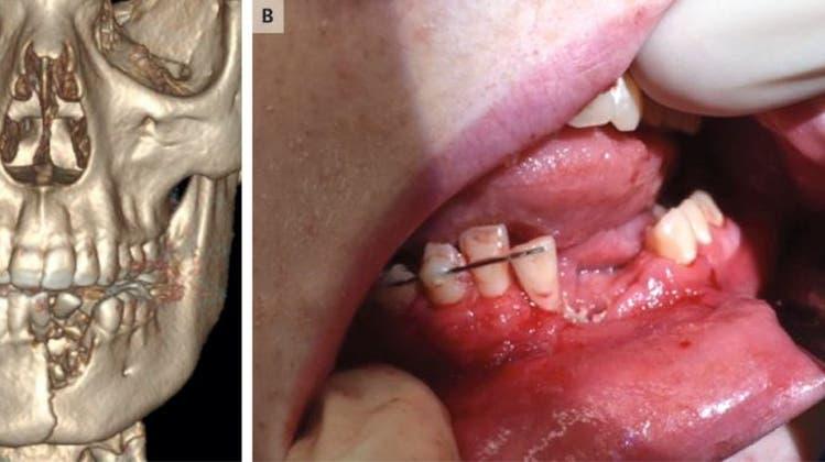 E-Zigi explodiert in Mund von Teenager – und bricht ihm den Kiefer