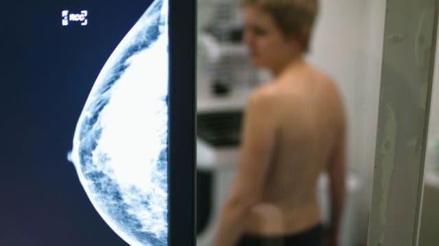 Projekt «Donna» startet: Frauen ab 50 werden zu Mammografie-Screening eingeladen