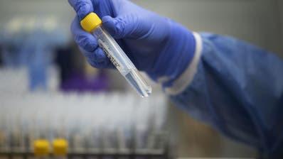 Neue Coronavirus-Variante erstmals in der Schweiz nachgewiesen
