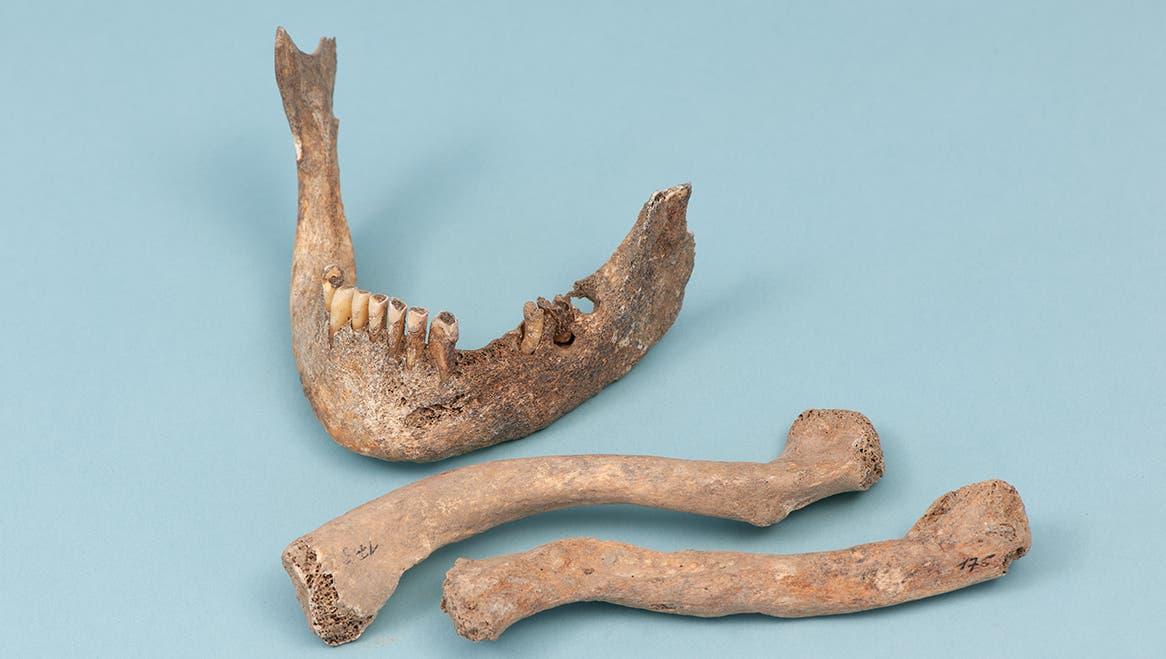 Der Fund auf einer altertümlichen Hinrichtungsstätte wird genau untersucht: Experten entlocken den Knochen wertvolle Informationen. (Symbolbild: Archiv/Res Eichenberger)