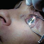 Die Katarakt-Operationen gehören zu den häufigsten am Auge – Tendenz steigend. (Bild: Andrew Harnik/Keystone, Washington, 1. Februar 2017)