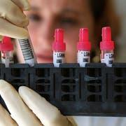 Eine Laborantin untersucht Blutproben (Archivbild: keystone)