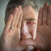 Im linken Auge von Tobias Bauer steckt einer seiner Eckzähne samt Zahnhals und Wurzeln. Die Sehfähigkeit durch die Plexiglaslinse beträgt 60 Prozent. Das andere Auge bleibt blind. (Bilder: Urs Bucher)