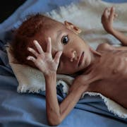 Ein massiv unterernährter Knabe im Jemen. Gesundheitsorganisationen zufolge sind in dem arabischen Land seit Ausbruch des Bürgerkriegs vor drei Jahren mutmasslich 85'000 Kinder im Alter unter fünf Jahren an Unterernährung gestorben. (Bild: Hani Mohammed/AP (Hajjah, 1. Oktober 2018))