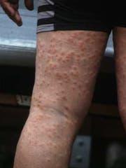 Von «Entenflöhen» verursachte Hautausschläge. (Bild: Max-Planck-Institut für Evolutionsbiologie)