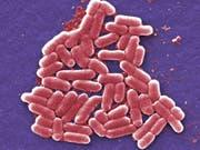 Im französischen Rohmilchkäse «Reblochon de Savoie Fermier le grand Bornand» wurden Bakterien nachgewiesen, die Magen-Darm-Erkrankungen und in schweren Fällen zu dauerhaften Nierenschädigungen führen können. (Bild: KEYSTONE/AP Centers for Disease Control and Prevention/JANICE CA)