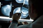 Ein Radiologe betrachtet Röntgenbilder einer weiblichen Brust. (Archivbild / Keystone)