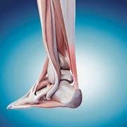 Eine überbelastete Achillessehne (r.) kann sich entzünden. (Bild: iStock)