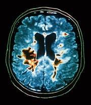 Ein Magnetresonanztomogramm zeigt typische Veränderungen im Gehirn, die bei Multipler Sklerose auftreten. Die Krankheit beginnt meist zwischen dem 20. und 40. Lebensjahr. (Bild: Zephyr/Science Photo Library)