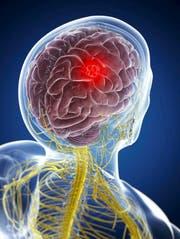 In der Schweiz wird jedes Jahr bei rund 500 Personen ein Gehirntumor diagnostiziert. (Bild: Getty)