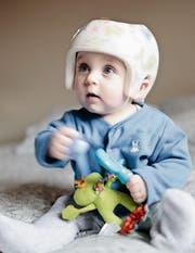 Ein Helm kann mithelfen, Kopfdeformitäten beim Kleinkind auszugleichen. (Bild: Getty)