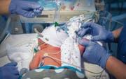 Vor wenigen Stunden geboren, muss bei dem Säugling schon Blut abgenommen werden.