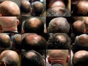 Mit dem Medikament Breezula will Cassiopea Haarausfall bekämpfen. Nun meldet das Unternehmen erste positive Daten. (Bild: KEYSTONE/ALESSANDRO DELLA BELLA)