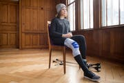 Michelle Gisin mit ihrem stabilisierten Bein am Dienstagnachmittag im Engelberger Hotel Bellevue. Bild: Boris Bürgisser (Engelberg, 29. Januar 2019)