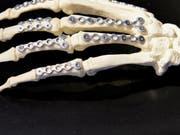 Legierungen aus Magnesium mit geringen Mengen Zink und Kalzium sind vom Körper abbaubar und eignen sich daher für Implantate wie Knochenschrauben und -platten. (Bild: ETH Zürich)