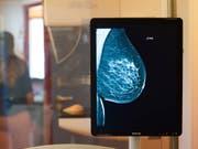 Sensible Daten aus Mammographie-Screenings oder anderen medizinischen Untersuchungen sind auf ungeschützten Servern gelandet und damit frei zugänglich. (Bild: Keystone/DPA zb/KLAUS-DIETMAR GABBERT)