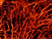 Insbesondere Blutgefässe lassen sich mit optoakustischer Bildgebung sichtbar machen. Die Methode kann aber auch Hirnaktivität messen, sowie bei der Diagnose von Brustkrebs und Hautkrankheiten helfen. (Bild: ETH Zürich / Daniel Razansky)