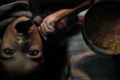 Die Katastrophe ist noch immer allgegenwärtig: Zahlreiche Kinder kamen und kommen mit Missbildungen zur Welt, wie beispielsweise Apeksha Malviya, deren Eltern dem Gift ausgesetzt waren. (Bild: Keystone)