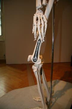 Implantate zur Stabilisierung des Skelettapparates, Carbonfaser, Polyetheretherketon. (Quelle: Textilmuseum) (Bild: Johannes Wey)