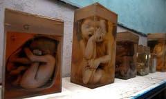 Mahnmal in Formaldehyd: missgebildete Föten lagern in einem Spital in Bhopal. (Bild: Keystone)