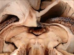 Diese Perspektive aufs Gehirn bekommen sonst nur Hirnchirurginnen und -chirurgen zu sehen. Das Siegerbild der Kategorie «Forschungsobjekt» entstand allerdings im Zuge einer anatomischen Studie, nicht während einer OP. (Bild: Kevin Akeret (Universitätsspital Zürich))