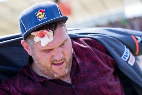 Christian Stucki mit einer blutenden Wunde auf der Stirn. (Bild: Philipp Schmidli)