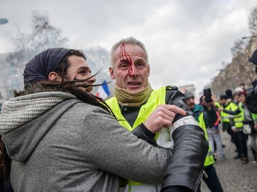 Mehrere Menschen wurden verletzt. Einer erlitt eine schwere Handverletzung. (Bild: KEYSTONE/EPA/CHRISTOPHE PETIT TESSON)