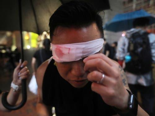 Ein Protestierender hat eine Augenbinde angezogen, um so seine Solidarität mit einer Frau zu zeigen, die bei den Protesten am Auge verletzt worden war. (Bild: KEYSTONE/EPA/VIVEK PRAKASH)
